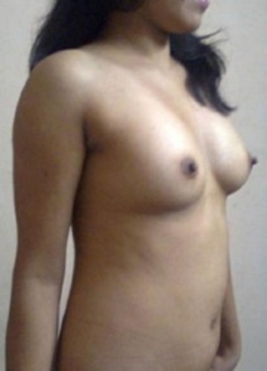 Indian amateur chick slowly slips out her tight dress and showing her yummy tits. - XXXonXXX - Pic 1